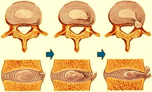 Шейный остеохондроз мед лечение